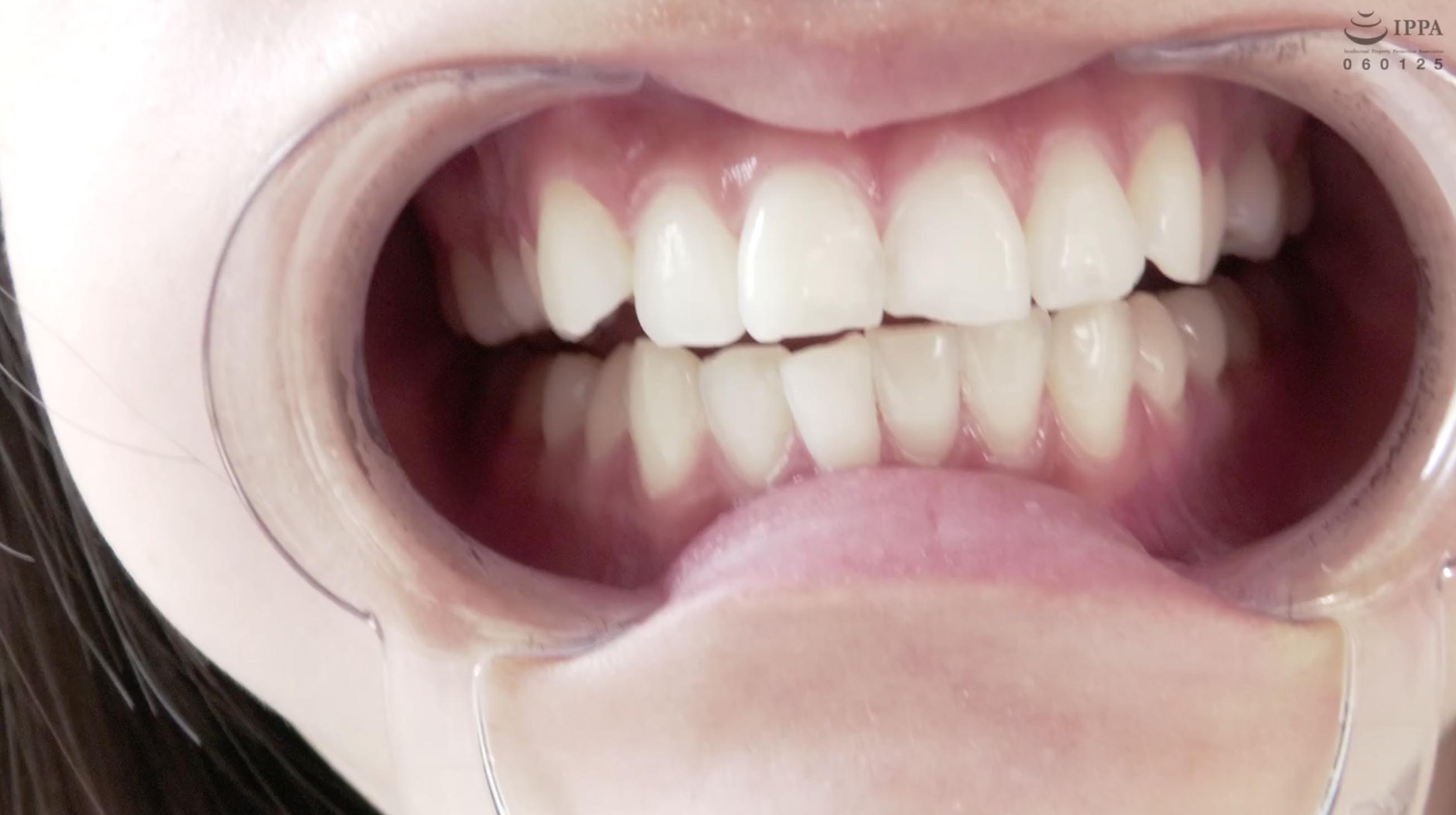 【歯・舌ベロ】素人モデル まみチャンの歯・舌ベロ観察☆(パッケージ画像)